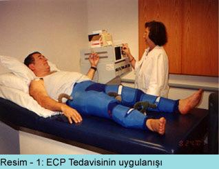 EECP Tedavisi (Doğal Bypass)