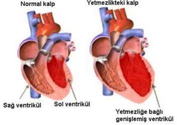 Koroner Kalp Hastalığı