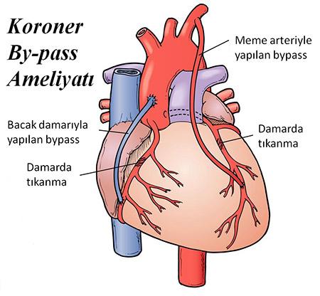 Bypass Ameliyatı Olmuş Hastalarda Doğal Bypass Tedavisi